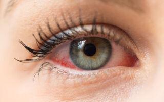 Осторожно! Красные глаза — симптом коронавируса