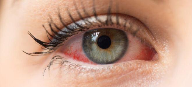 Осторожно! Красные глаза