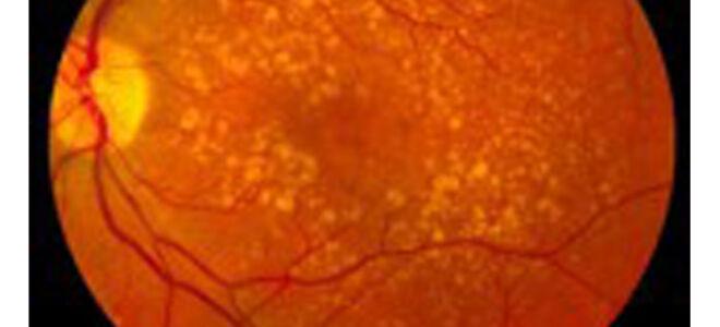 """Ангиосклероз сетчатки глаза: симптомы и лечение - """"Здоровое око"""""""