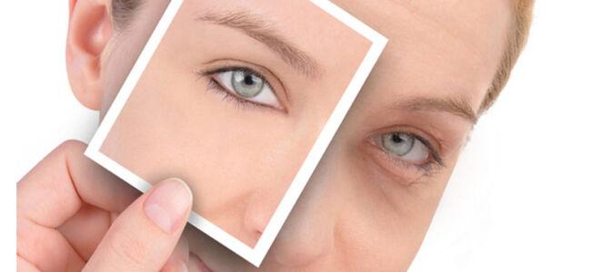 Как быстро убрать отеки под глазами: лучшие способы