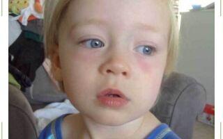 Красные пятна под глазами у ребенка