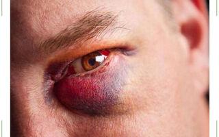 Сколько проходит синяк под глазом