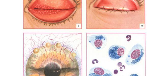 Трахома глаз