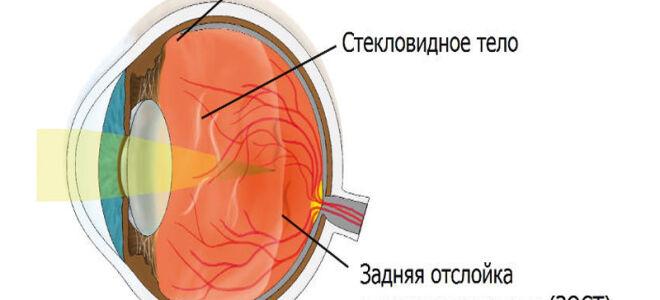 Задняя отслойка стекловидного тела (ЗОСТ)