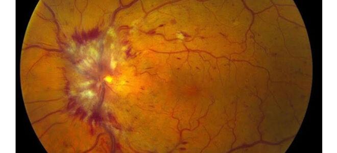 Макулярный отек сечатки глаза