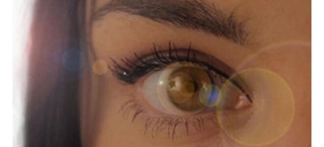 Плавающие ниточки в глазах