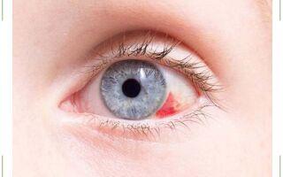 Почему лопаются сосуды в глазах и что делать