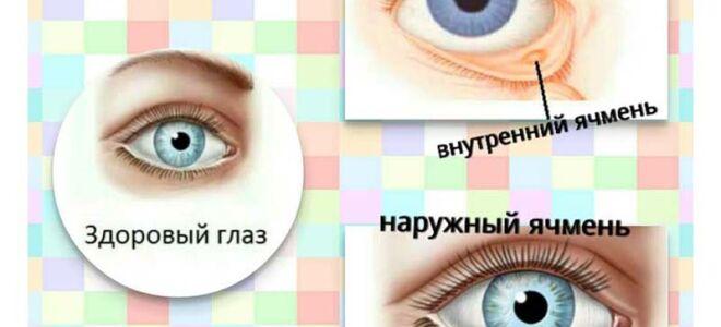 Заразен ли ячмень на глазу у ребенка и взрослого