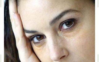 Желтые круги вокруг глаз
