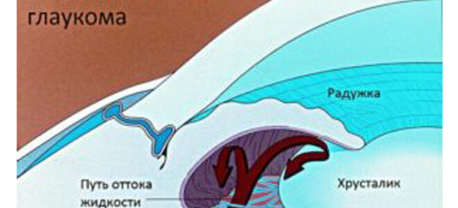 Закрытоугольная глаукома