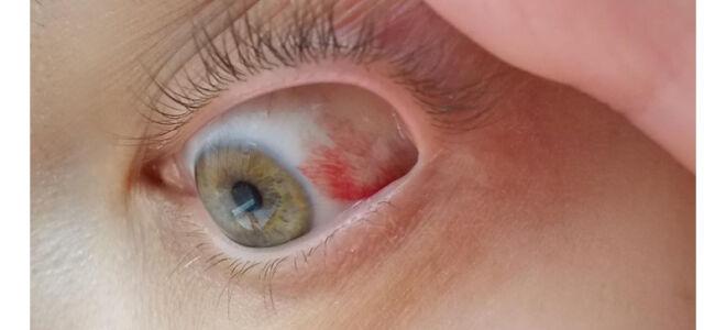 Покраснение глазного яблока