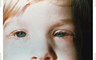 Гнойный конъюнктивит у детей
