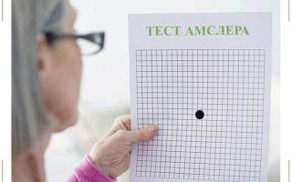 Тест Амслера