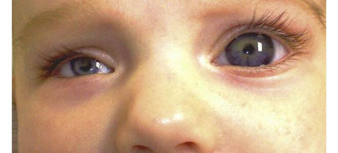 У ребенка один глаз больше другого
