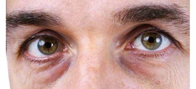 Темные круги под глазами у мужчин
