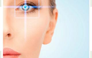 ЛАСИК (LASIK) — лазерная коррекция зрения