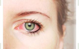 Почему краснеют глаза от линз?