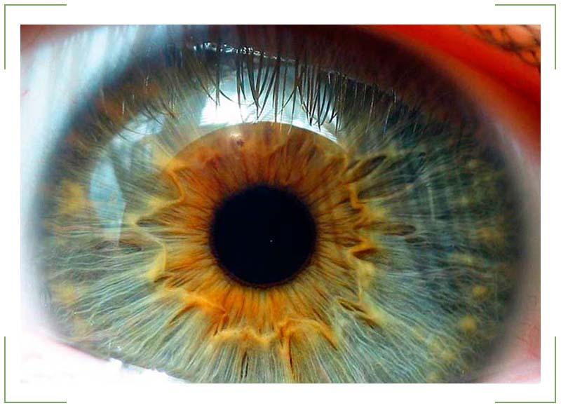 Ангиопатия сосудов сетчатки глаза у ребенка (в т.ч. у новорожденного)