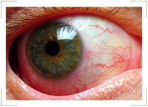 Боль в уголке глаза при моргании