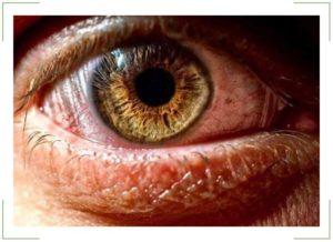 Болят мышцы глазного яблока