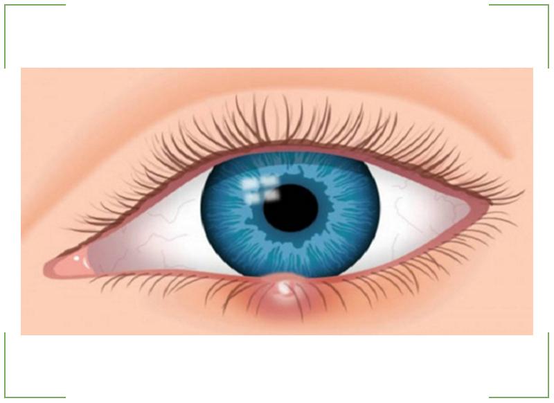 Как вылечить ячмень на глазу – быстрое лечение ячменя на веке дома