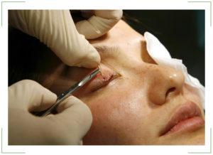 Киста верхнего века глаза лечение thumbnail
