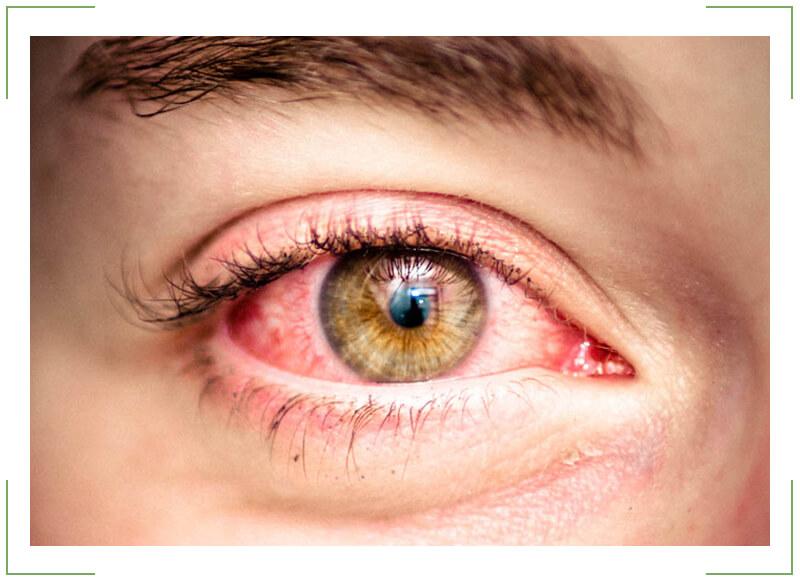 Болит глаз после сна что делать