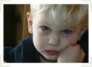 Если у ребенка при простуде красные глаза