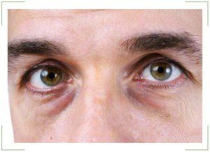 Вокруг глаз желтые круги фото thumbnail