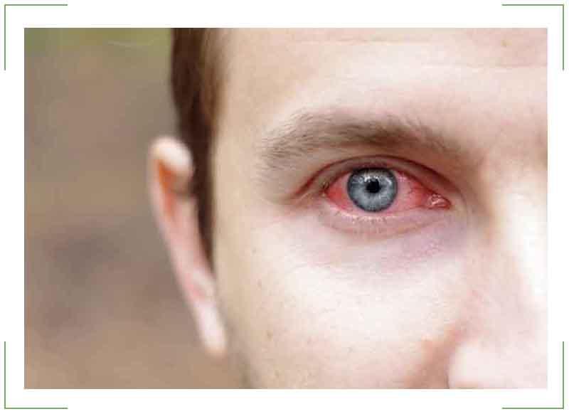 Глазной эписклерит — Болезни глаз