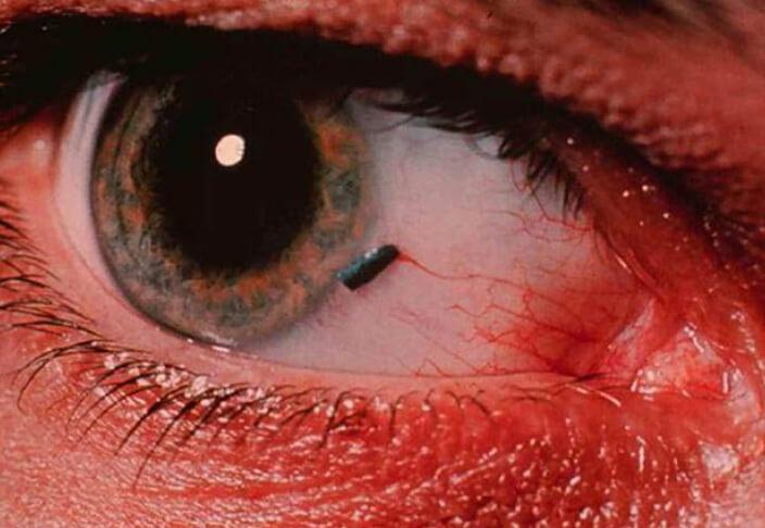 Реакция глаз на яркий свет головокружение