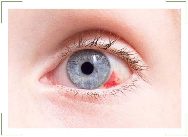 Как лечить глаза если лопнули кровеносные сосуды