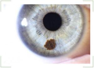 Что такое пигментный невус на роговице глаза