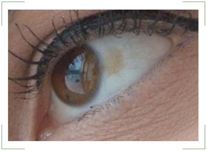 Черные точки перед глазами: причины возникновения, симптомы.