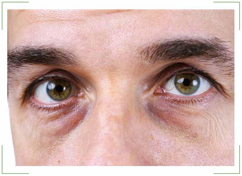 Синяки под глазами у мужчин — как быстро убрать