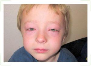 Отечность глаз у ребенка при температуре