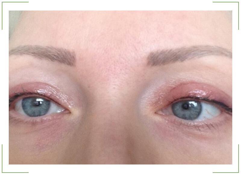Почему опух глаз: возможные причины