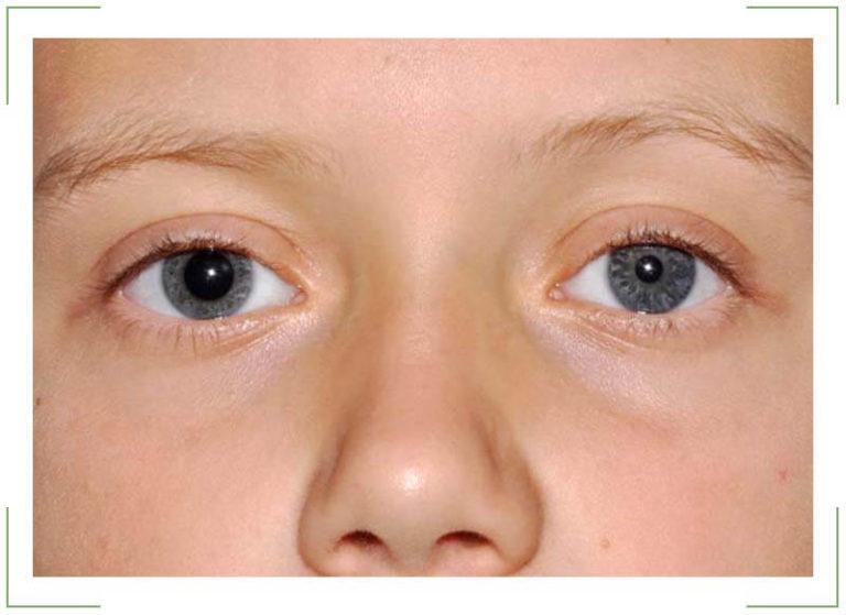 Глаза детей – это истинное отражение души, которое способно показать не только его эмоциональное состояние и чувства, но также и всевозможные недуги.
