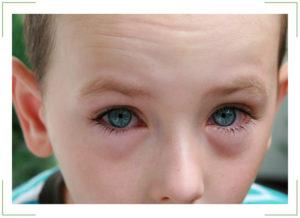 Слезятся глазки у ребенка 1 год
