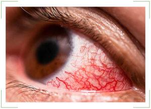 Световые вспышки в глазах и головная боль