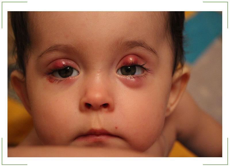 Лечение халязиона детям год