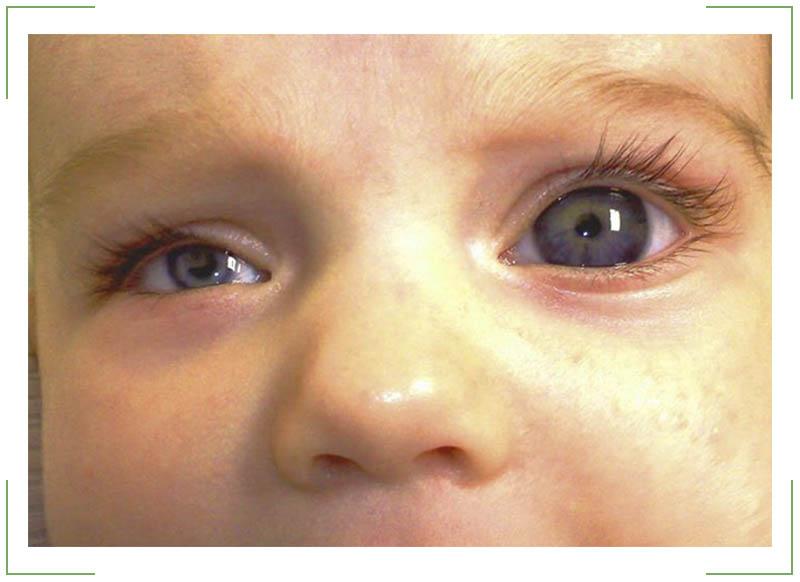 Почему один глаз стал меньше другого