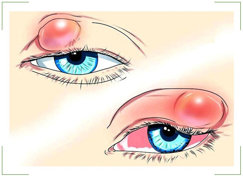 Когда обращаться к врачу, если появилась шишка под глазом на нижнем веке? Белые жировики под глазами: как убрать, причины