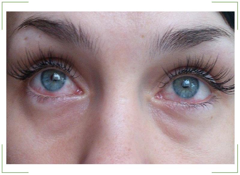 Красные глаза после наращивания ресниц. Что делать? Советы на Melady.by