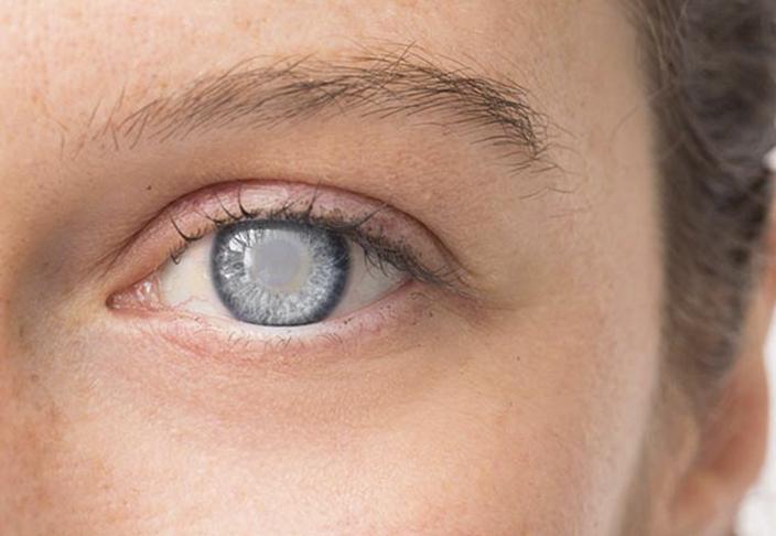 Как вылечить катаракту народными средствами: советы, рецепты