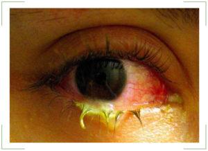 Лечение гнойного конъюнктивита у взрослых thumbnail