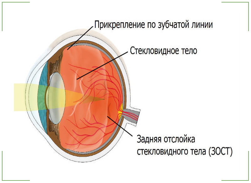 Отслоение стекловидного тела глаза лечение