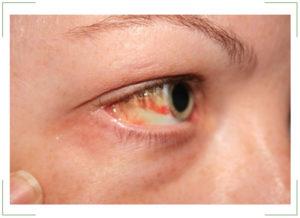 Покраснение глаз причины и лечение у взрослых