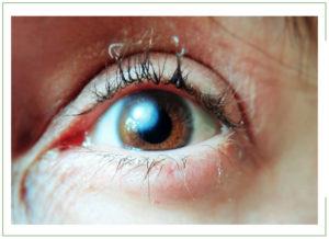 Как вылечить эрозию роговицы глаза