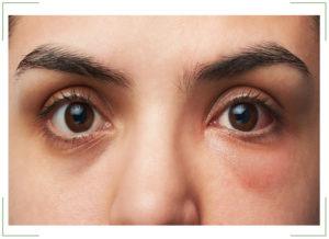 Отеки под глазами от чего как лечить